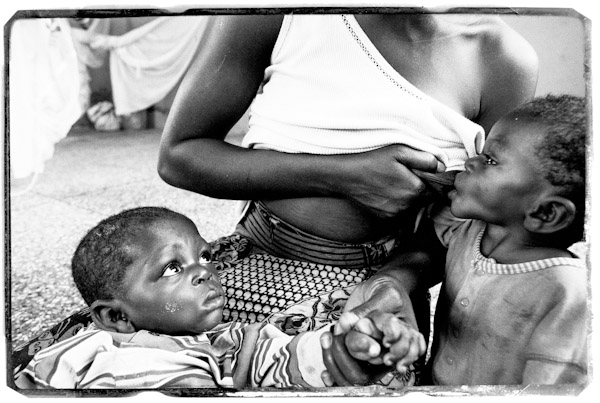 world food day, ghana, malnutrition, food,